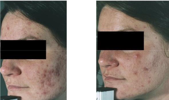 laser pour couperose effets secondaires